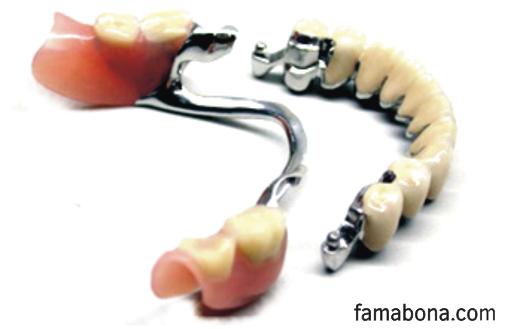 зъбни протези